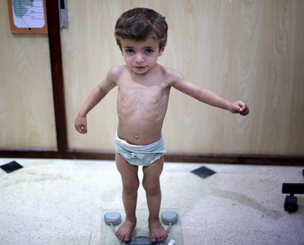 hậu quả nghiêm trọng của việc trẻ bị nhẹ cân, suy dinh dưỡng