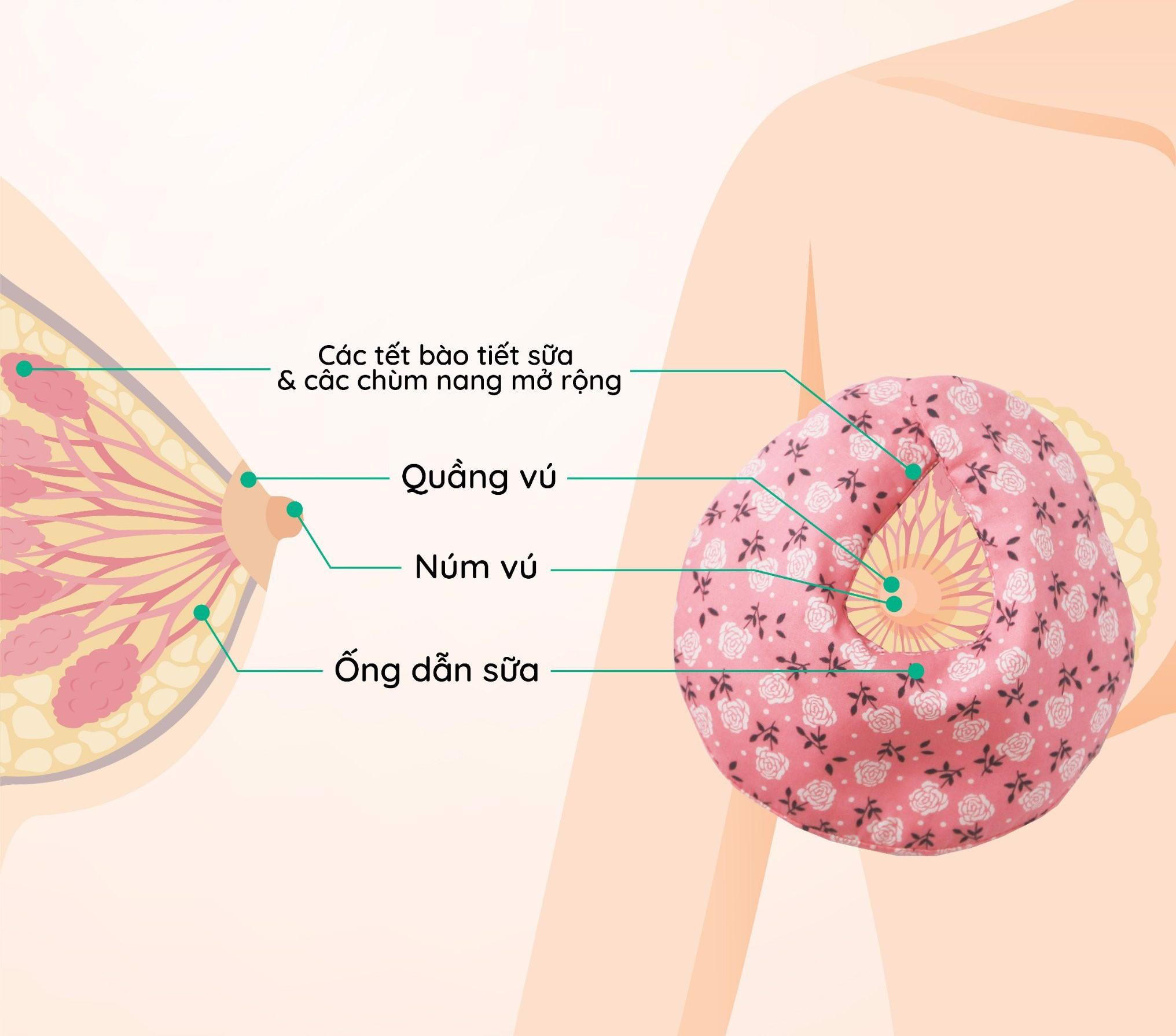 Sử dụng túi chườm ấm bầu ngực để khắc phục tắc tia sữa